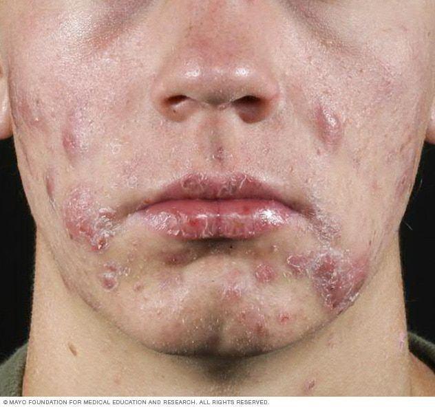 best of Accumulates lumps blood Facial