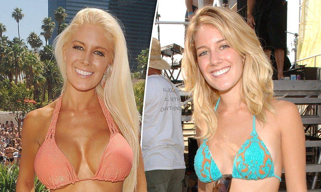 Slug reccomend Big blonde breasted breast implants