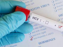Ace recomended c analingus Hepatitis and
